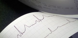 Treperenje srca