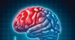 Komplikacije moždanog udara
