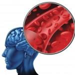 moždani udar usled pucanja aneurizme