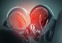 potres mozga