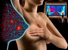 Dijagnoza raka dojke