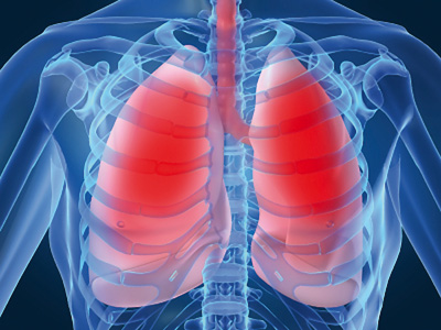 opstruktivna bolest pluća