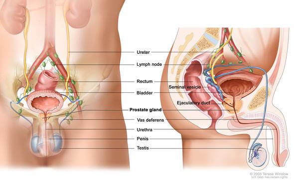 Prostatitis napon