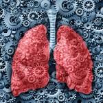 Upala pluća