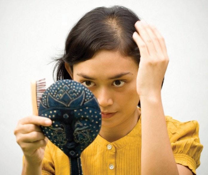 zašto kosa opada