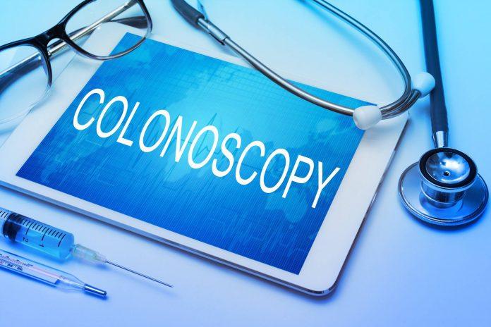 kolonoskopija