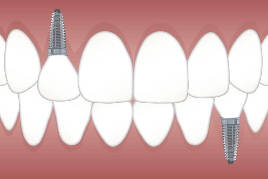 nadoknada zuba
