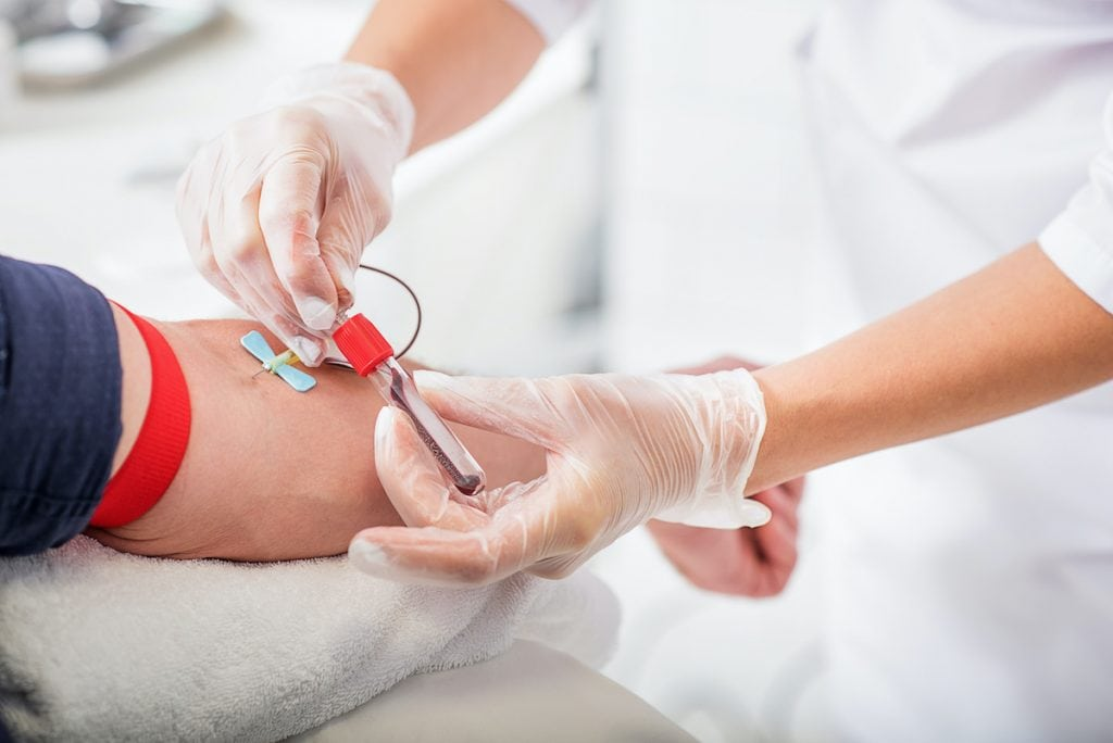 uzimanje krvi za test opterećenja